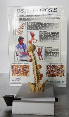 3D Display With Vertebrae Model