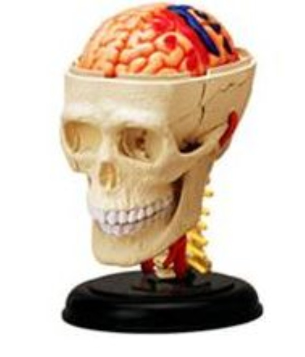 3D Brain+Bone Mould